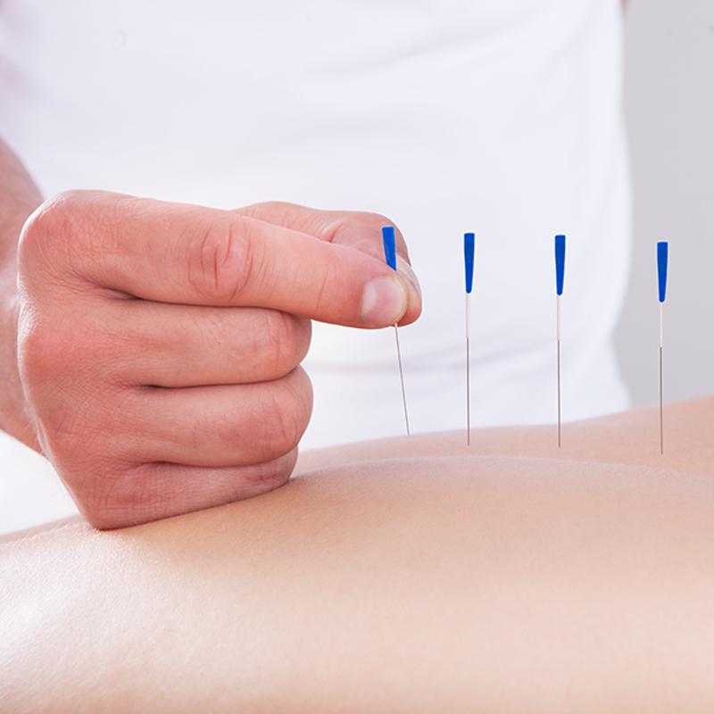 Acupuncture Sydney